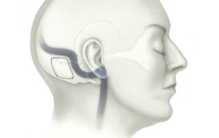 Lateral view of the craniotomy created in the retrosigmoid approach.