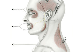The cranial nerve monitoring montage utilized during surgery of the cerebellopontine angle includes electrodes placed in the muscles innervated by each motor nerve in the region (cranial nerves 5, 7, and 11). To monitor the facial nerve, electrode pairs are inserted into both the orbicularis oris and oculi muscles. The motor division of the trigeminal is monitored through an electrode pair in the temporalis muscle.